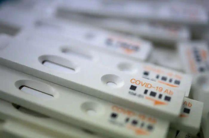 情况有变!英国抗体检测盒上市未定,企业和个人如何应对?